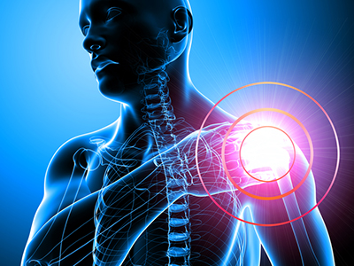 Shoulder Pain Pathway Bearing Results for Canterbury